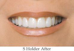 S-Holder-After