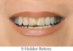 S-Holder-Before