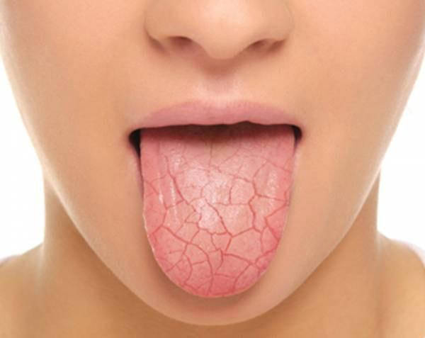 Understanding Dry Mouth: Facts and Tips